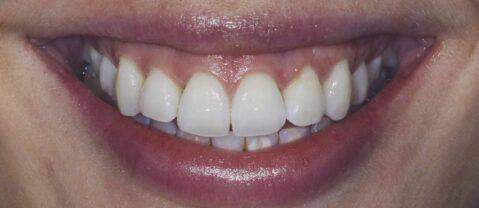 gums and teeth
